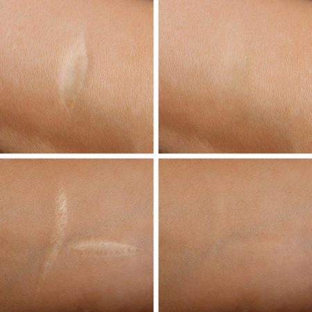 Medical tattooing tattoo treatment pigment scar reduce surgery cosmetic Lesley Andrews
