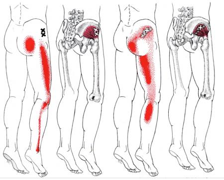 болят суставы по одной стороне тела