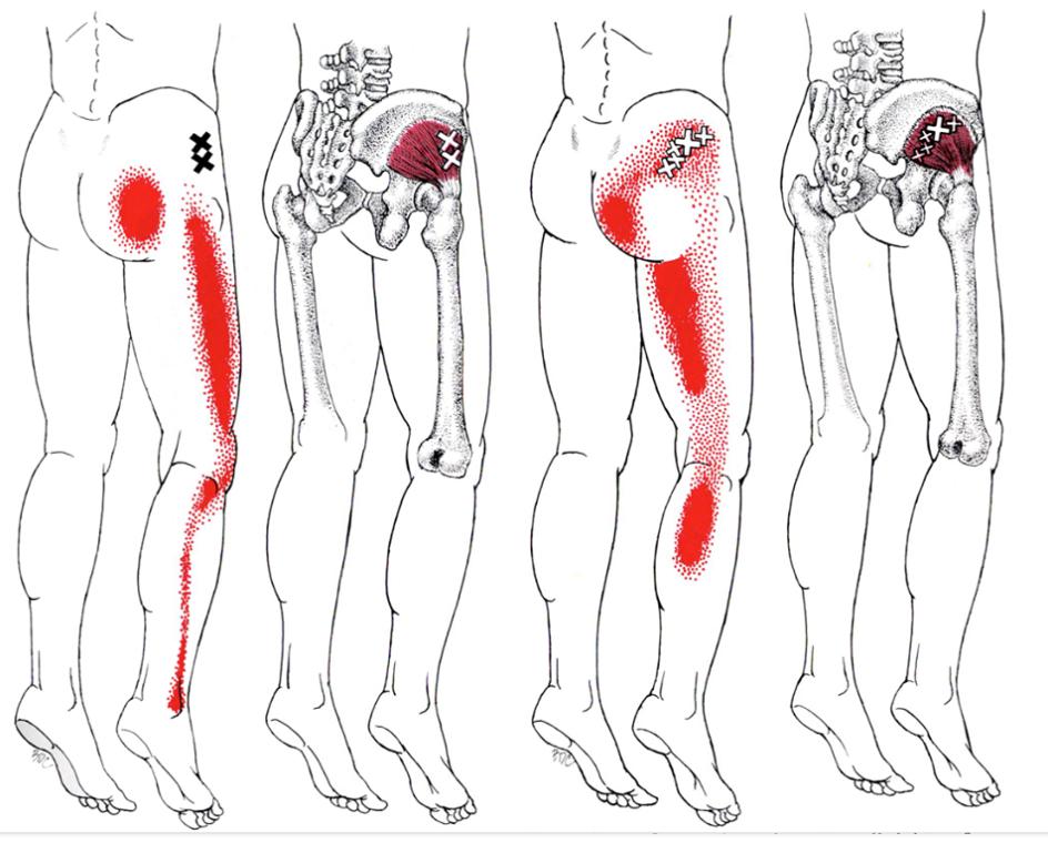 Chiropractic Emsworth sciatica