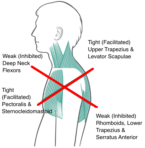 Upper Crossed Syndrome A Chiropractor S Guide To Postural Pain