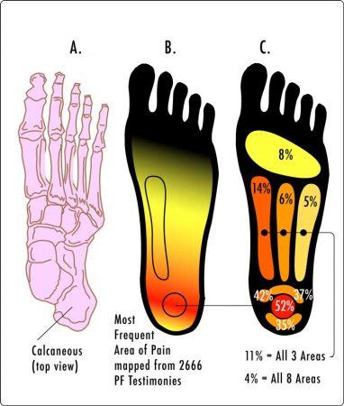 plantar fasciitis heel pain plantar fascia running runner foot pain heel achilles tendon run pain chiropractor chiropractic treatment